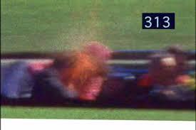 John F. Kennedy at the fatal headshot; Zapruder film frame 313